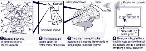 Robotic Prosthetic